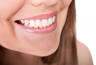 alta white smile